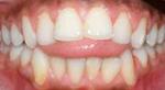 Dr. Hage, Hage Orthodontics, Tongue Thrust, Forsyth Orthodontics, Mattoon Orthodontics, Effingham Orthodontics